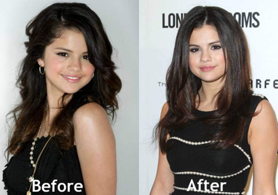 Juicy facts about the selena gomezs plastic surgery claims selena gomez started very young in the acting and music industry so most of her fans and critics grew up watching her transform from a barney kid to a voltagebd Gallery